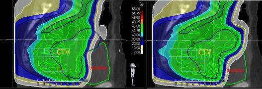 CT-scan and dose distribution (sagittal view) for a cervical cancer patient, during the course of treatment.